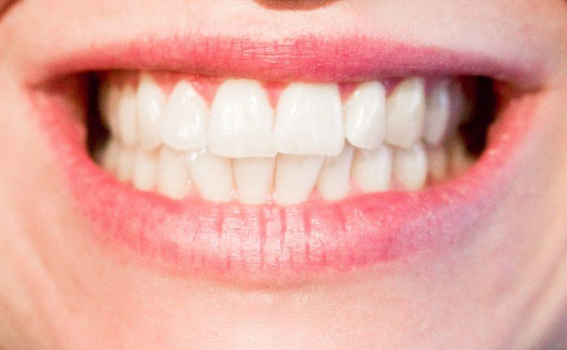 Dzisiejsza technika używana w salonach stomatologii estetycznej zdoła sprawić, że odzyskamy śliczny uśmiech.